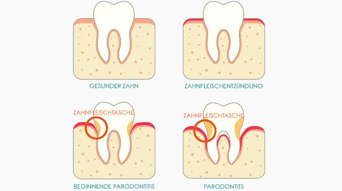 Risiko Zahnfleischtaschen: Was Muss Ich Beachten?