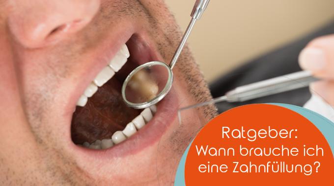 Ratgeber: Wann Brauche Ich Eine Zahnfüllung?